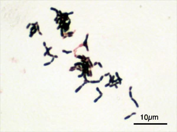 Bifidobacterium adolescentis