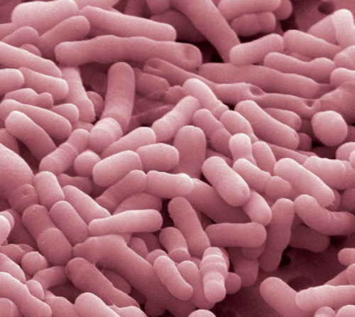 Bifidobacterium animalis