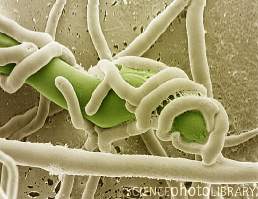Trichoderma aeroaquaticum - NBRC 108034