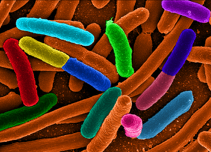Escherichia coli - NBRC 13898