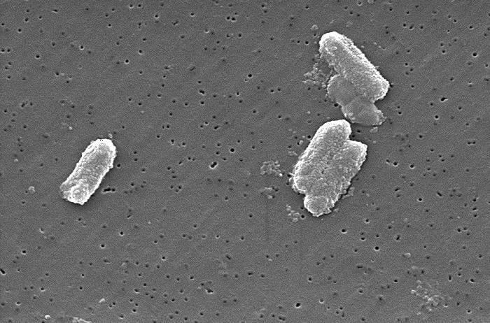 Citrobacter freundii
