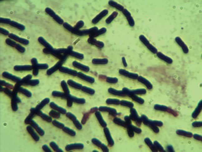 Clostridium butyricum