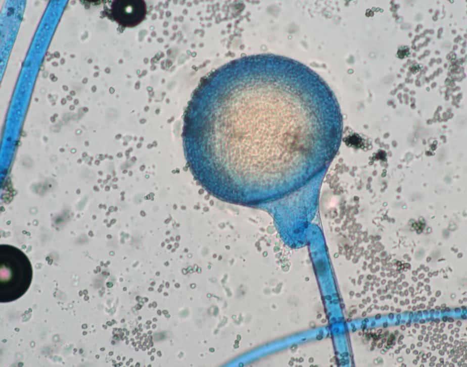 Rhizopus microsporus