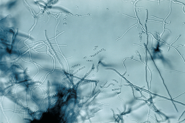 Streptomyces aureus