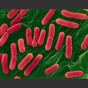 Escherichia coli 22