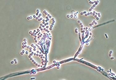 Paecilomyces marquandii