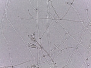 Purpureocillium lilacinum