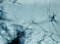 Streptomyces owasiensis