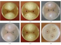 Streptomyces rochei