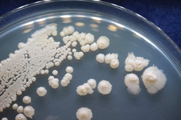 Streptomyces fragilis